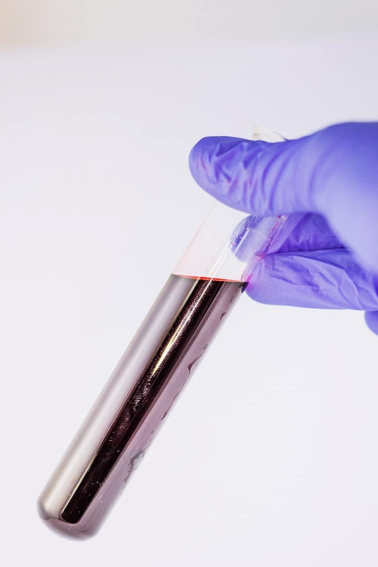 Hand holding a blood sample in a test tube.