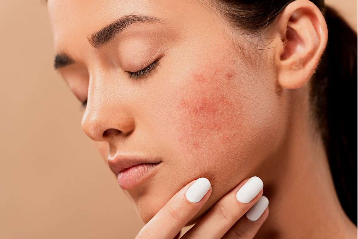 Woman with hormonal acne on her cheek and touching her skin.