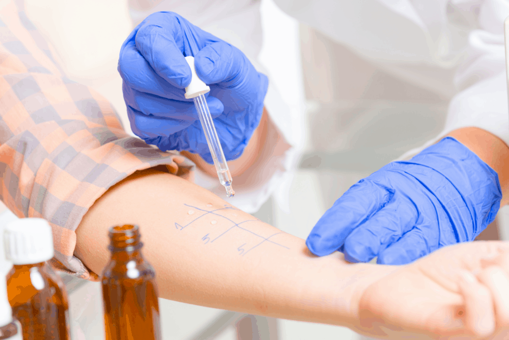 Doctor doing allergy skin prick test for cows milk protein allergy on patient's arm.